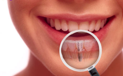How To Maintain Your Teeth Well
