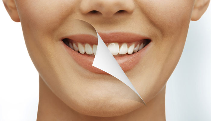 Some Of The Useful Tips On Wearing Invisalign And Some Precautions